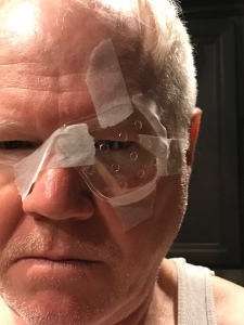 Postoperative cataract cyclops.  Here I am wearing an eye guard. You're not supposed to rub your eyes for a few weeks after cataract surgery. This getup prevents nighttime eye rubbing.